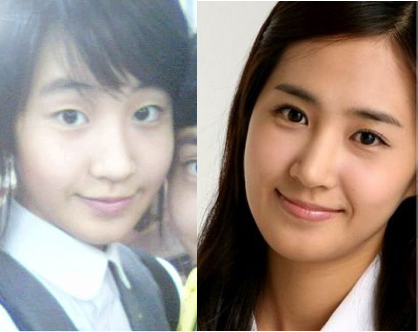 SNSD s Yuri - before and after eyelid surgeryYuri Snsd Before And After