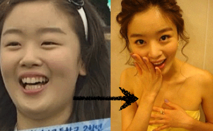 Kang Sora Reveals Her Secret 4 Rules In Losing 53lbs In A Healthy Way